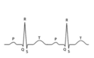 Analiza-ECG